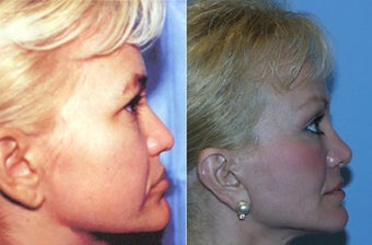 Dr Mark Prysi performed rhinoplasty before 1245711