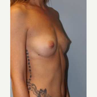 18-24 year old woman treated with Breast Implants before 3321783