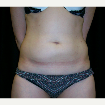35-44 year old woman treated with CoolSculpting before 3617292