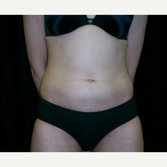 35-44 year old woman treated with CoolSculpting after 3617292