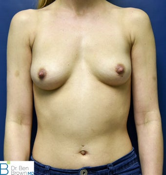 25-34 year old woman treated with Breast Augmentation before 2687657