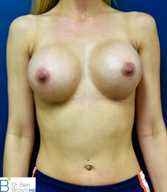 25-34 year old woman treated with Breast Augmentation after 2687657
