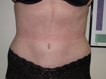 Tummy Tuck after 525162