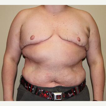 18-24 year old man treated with FTM Chest Masculinization Surgery after 3215338