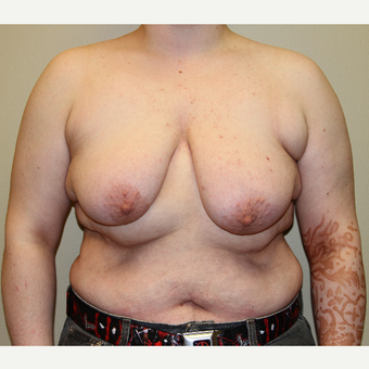 18-24 year old man treated with FTM Chest Masculinization Surgery before 3215338