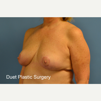45-54 year old woman treated with Breast Lift after 3350274