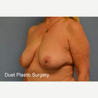 45-54 year old woman treated with Breast Lift before 3350274