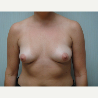 25-34 year old woman treated with Breast Augmentation before 3823399