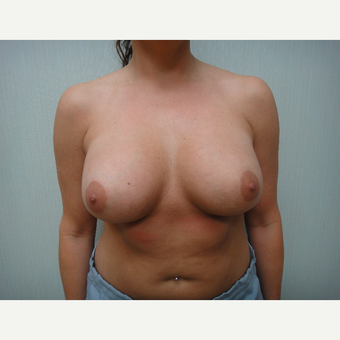 25-34 year old woman treated with Breast Augmentation after 3823399