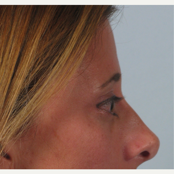 35-44 year old woman treated with Brow Lift after 3261203