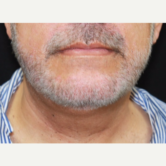 57 year old male treated with Kybella after 3026082
