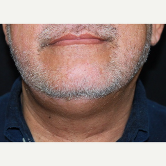 57 year old male treated with Kybella before 3026082