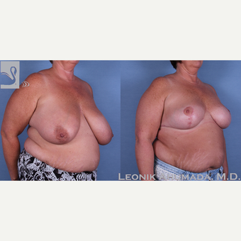 45-54 year old woman treated with Breast Reduction after 3093423