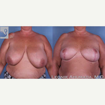 45-54 year old woman treated with Breast Reduction before 3093423