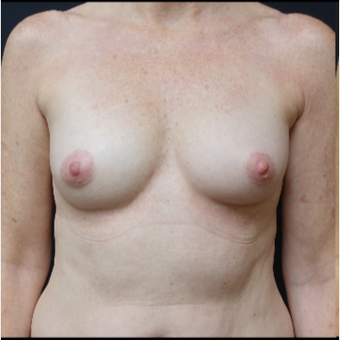 35-44 year old woman treated with Breast Augmentation before 3280299