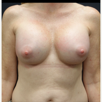 35-44 year old woman treated with Breast Augmentation after 3280299