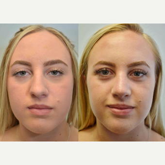 (Rhinoplasty) 17 Year Old Female with difficulty breathing, collapsed airway, and nostril asymmetry before 3076781