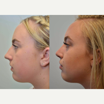 (Rhinoplasty) 17 Year Old Female with difficulty breathing, collapsed airway, and nostril asymmetry after 3076781
