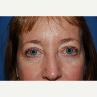 45-54 year old woman treated with Eyelid Surgery after 3782098