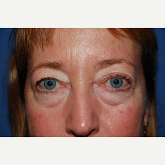 45-54 year old woman treated with Eyelid Surgery before 3782098