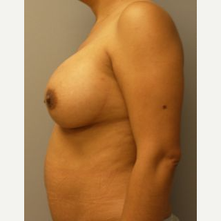 25-34 year old woman treated with Breast Implants after 3107923