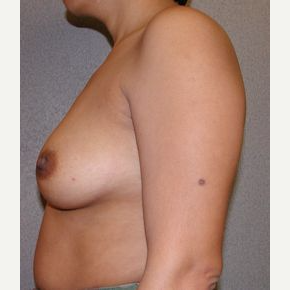 25-34 year old woman treated with Breast Implants before 3107923