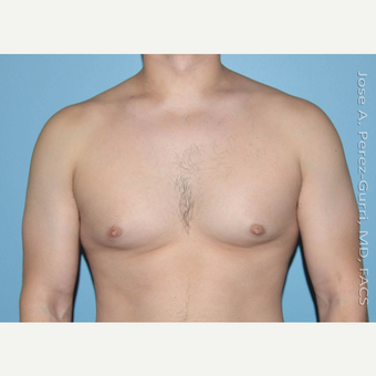 18-24 year old man treated with Male Breast Reduction before 3146093