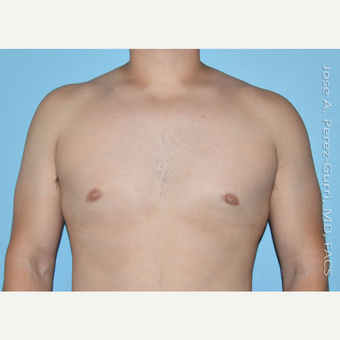 18-24 year old man treated with Male Breast Reduction after 3146093