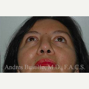 43 year old woman treated with Revision Rhinoplasty after 3460790
