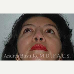 43 year old woman treated with Revision Rhinoplasty before 3460790