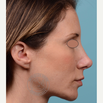 35-44 year old woman treated with Revision Rhinoplasty/Septoplasty before 3093948