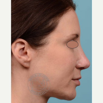 35-44 year old woman treated with Revision Rhinoplasty/Septoplasty after 3093948