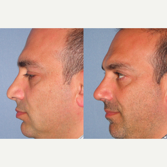 35-44 year old man treated with Revision Rhinoplasty after 3521869