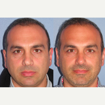 35-44 year old man treated with Revision Rhinoplasty before 3521869