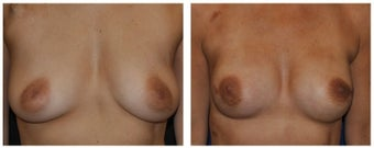 Nipple Sparing Mastectomy Before & After
