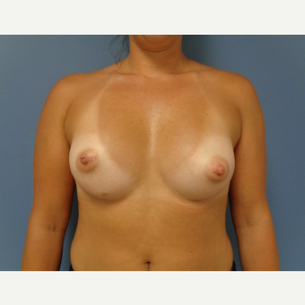 25-34 year old woman treated with Breast Augmentation after 3493637