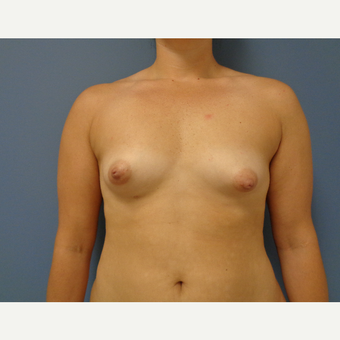 25-34 year old woman treated with Breast Augmentation before 3493637