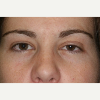 23 year old woman treated with Eyelid Surgery before 3026549