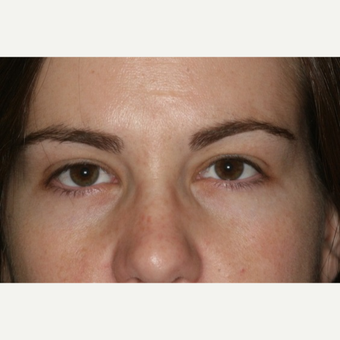 23 year old woman treated with Eyelid Surgery after 3026549