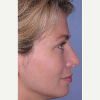 35-44 year old woman treated with Rhinoplasty after 3521211