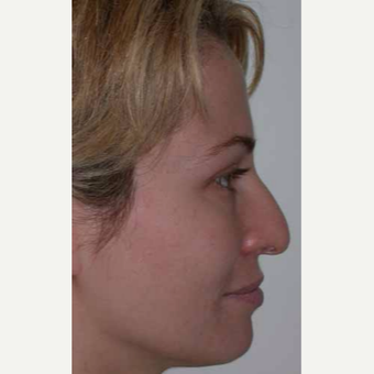 35-44 year old woman treated with Rhinoplasty before 3521211