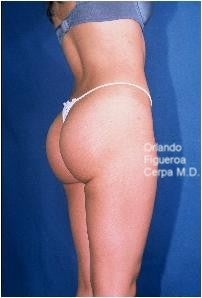 25 year old female. Buttock implants, oval style Size  210 cc. after 1060786