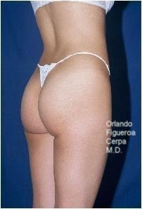 25 year old female. Buttock implants, oval style Size  210 cc. before 1060786