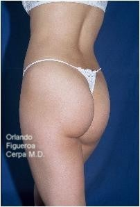 25 year old female. Buttock implants, oval style Size  210 cc. 1060786