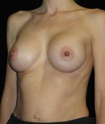 40 year old woman treated with Breast Augmentation 3103659