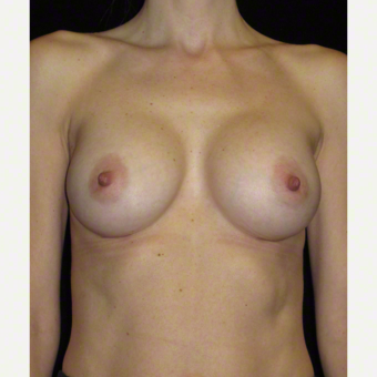 40 year old woman treated with Breast Augmentation after 3103659