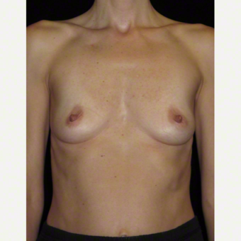 40 year old woman treated with Breast Augmentation before 3103659