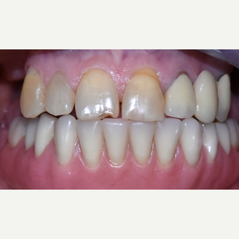 55-64 year old woman treated with All-on-4 Dental Implants after 3113898