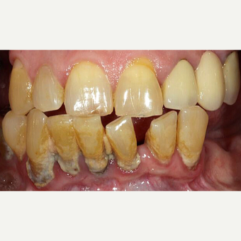 55-64 year old woman treated with All-on-4 Dental Implants before 3113898