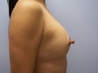 Breast Augmentation via fat transfer to breasts 1401945